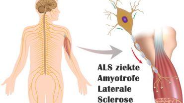 ALS ziekte Amyotrofe laterale sclerose - gezond10