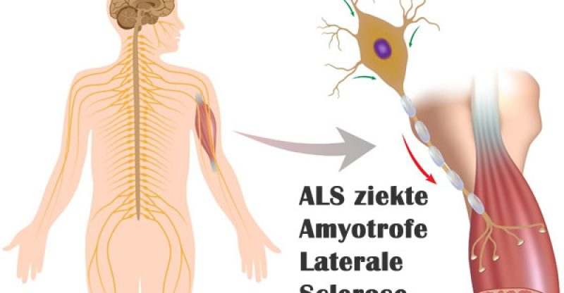 Citaten Ziekte Als : Als ziekte amyotrofe laterale sclerose