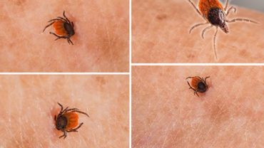 Ziekte van Lyme - tekenbeet